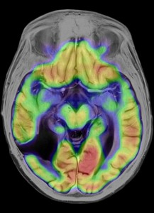 MR image of a brain following successful tumor therapy.