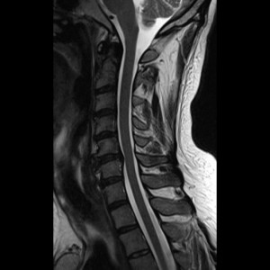other spine
