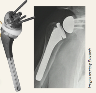 shoulder prosthesis pic and x-ray